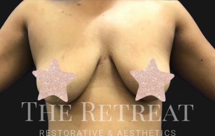 Breast Augmentation Before & After Patient #3106