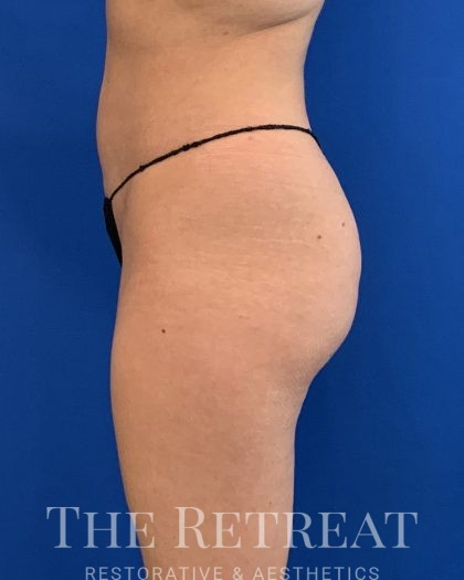 Brazilian Butt Lift Before & After Patient #3053