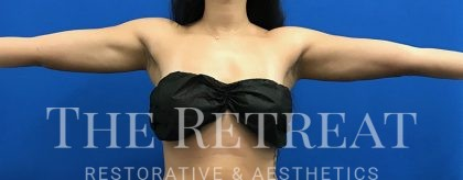 Liposuction Before & After Patient #3094