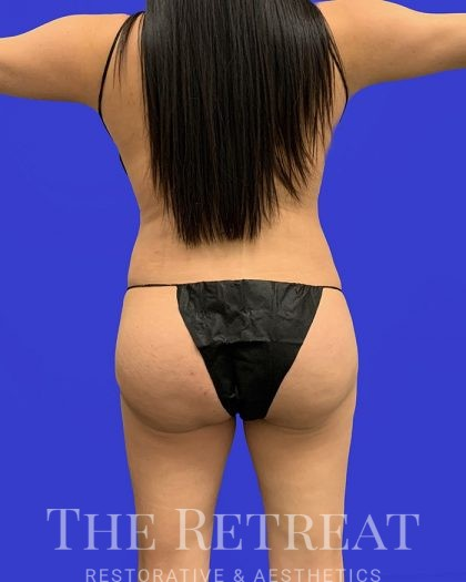 Brazilian Butt Lift Before & After Patient #3056