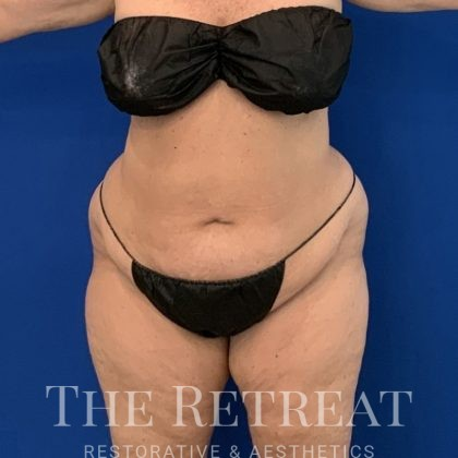 Liposuction Before & After Patient #3080