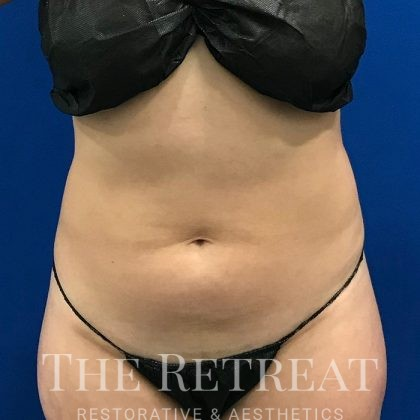 Liposuction Before & After Patient #3083