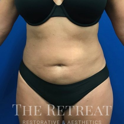 Liposuction Before & After Patient #3086