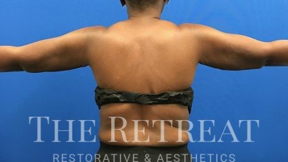 Liposuction Before & After Patient #3091