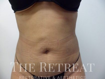 BodyTite Before & After Patient #3113