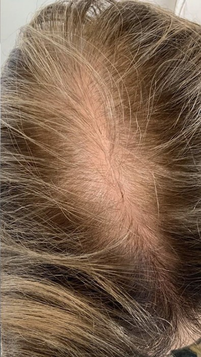 Hair Loss Treatment Before & After Patient #3245