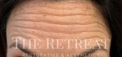 Jeuveau Before & After Patient #3242