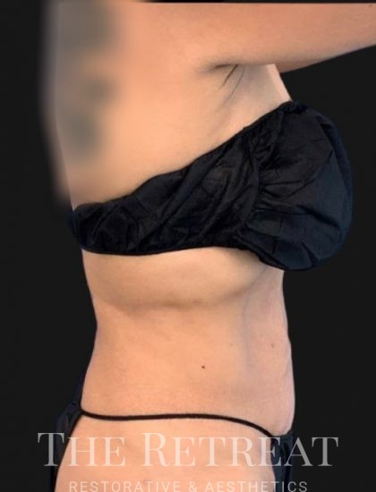 Quantum Abs Before & After Patient #3292