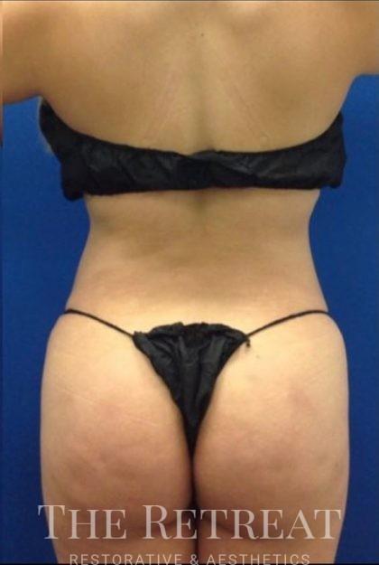 Brazilian Butt Lift Before & After Patient #3277