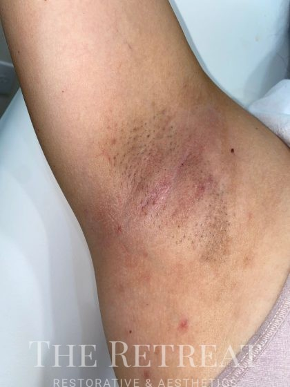 Laser Hair Removal Before & After Patient #3274
