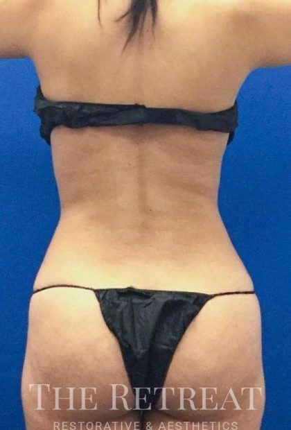BodyTite Before & After Patient #3280