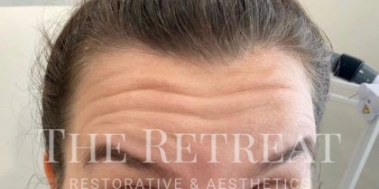 Botox Before & After Patient #3259