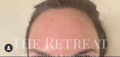 Botox Before & After Patient #3263