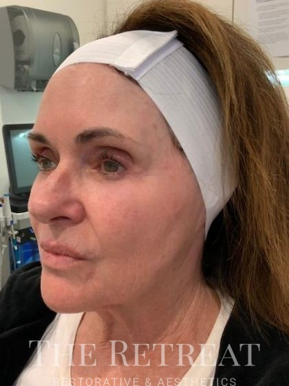 Chemical Peels Before & After Patient #3266