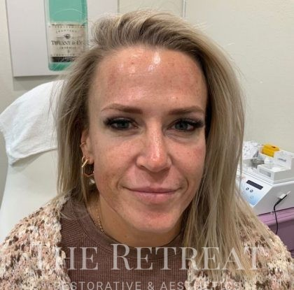 IPL Photofacial Before & After Patient #3269
