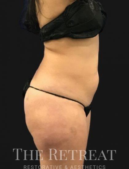 Brazilian Butt Lift Before & After Patient #3381