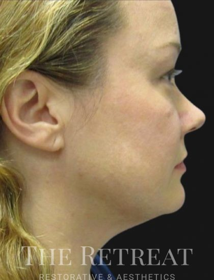 Quantum Face Before & After Patient #3396