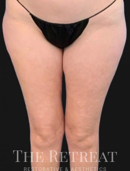 Quantum Thighs Before & After Patient #3433