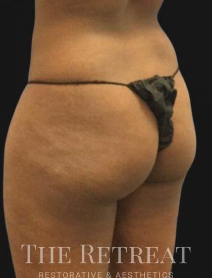 Brazilian Butt Lift Before & After Patient #3384