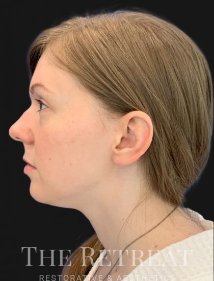 Quantum Face Before & After Patient #3402