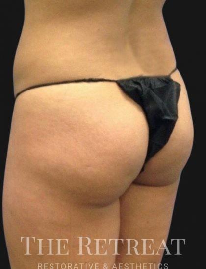 Brazilian Butt Lift Before & After Patient #3387