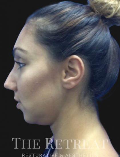 Quantum Face Before & After Patient #3405