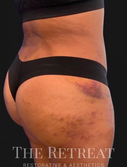 Brazilian Butt Lift Before & After Patient #3390