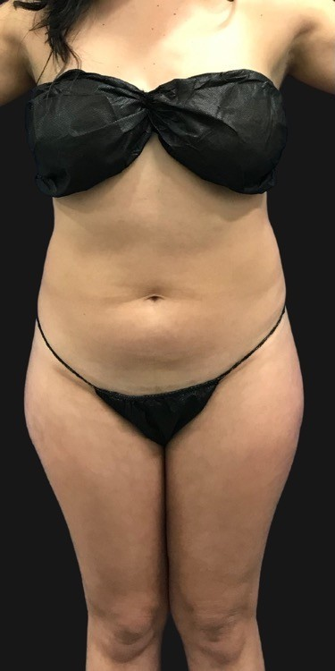 Quantum Abs Before & After Patient #3416