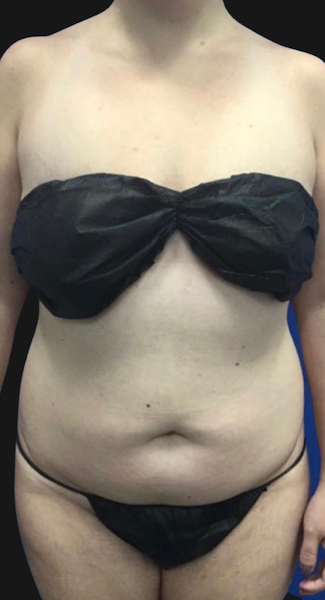 Quantum Abs Before & After Patient #3515