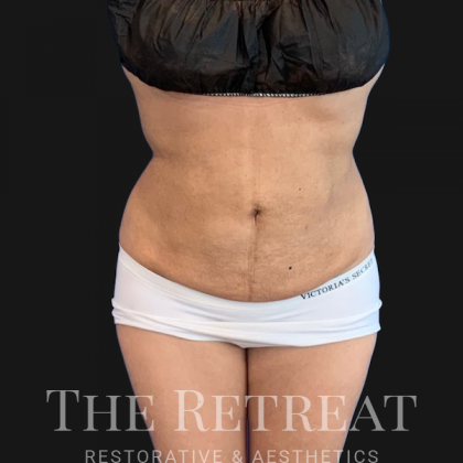 Quantum Abs Before & After Patient #3518
