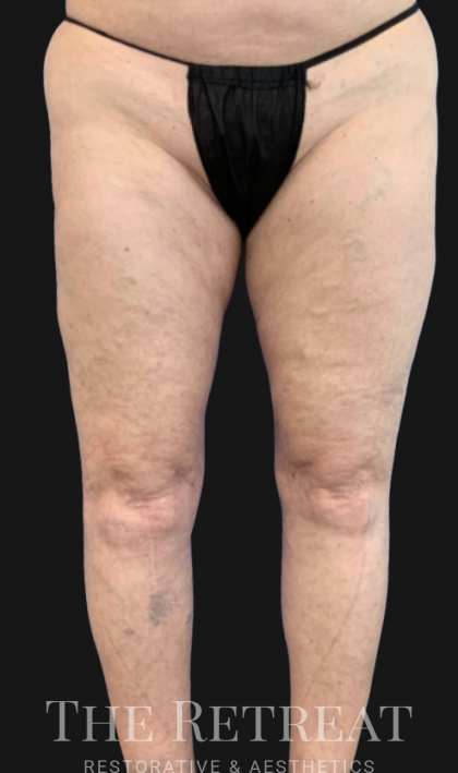 Quantum Thighs Before & After Patient #3560