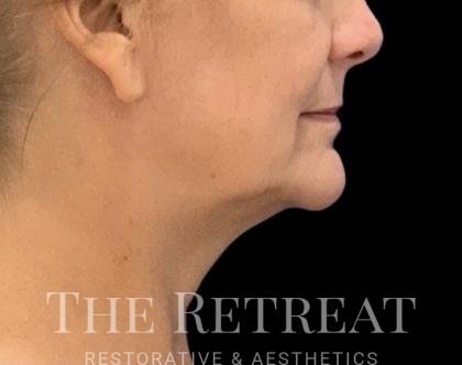 Quantum Face Before & After Patient #3625