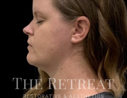 Quantum Face Before & After Patient #3629