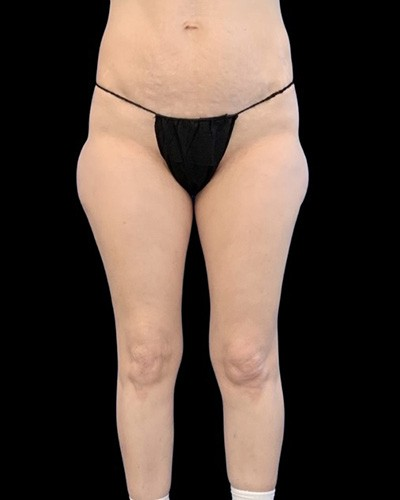 Quantum Thighs Before & After Patient #3592